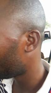 journalist_attacked